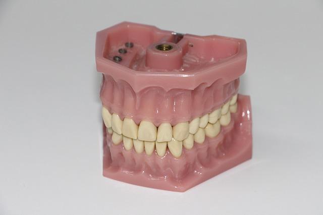 dentures-1514697_640